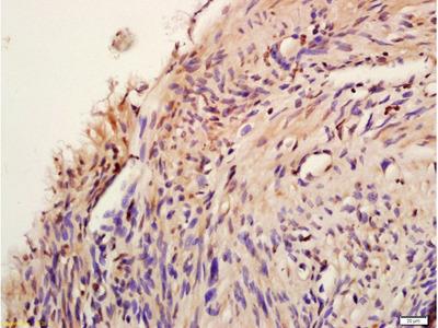 AKT1/2/3 (Tyr474) Antibody