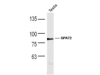 GPAT2 Antibody, Biotin Conjugated