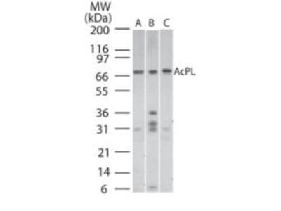 IL18RAP Polyclonal Antibody