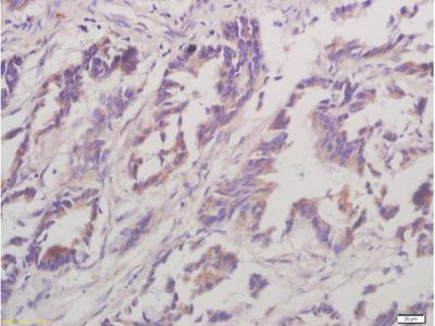 Caseine Kinase 1 alpha Antibody