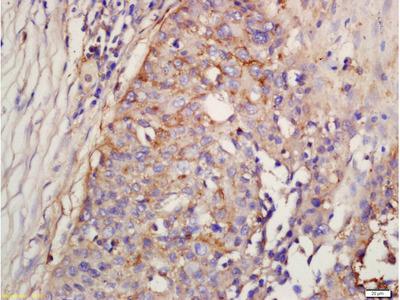 Factor D/Adipsin Antibody