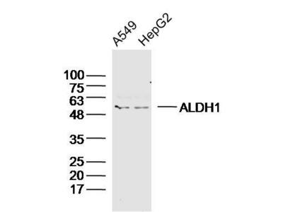ALDH1 Antibody, Cy3 Conjugated