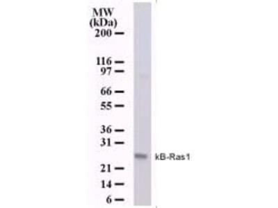 KappaB ras1 Monoclonal Antibody (184C278)