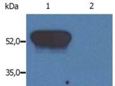 GFAP Monoclonal Antibody (GF-02)