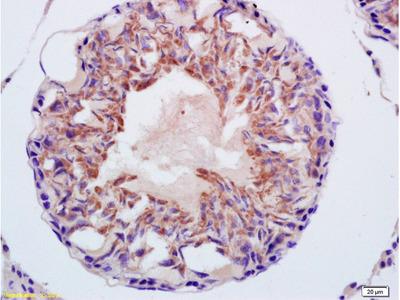 CITED1/ABCC1 Antibody