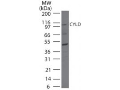 CYLD Polyclonal Antibody