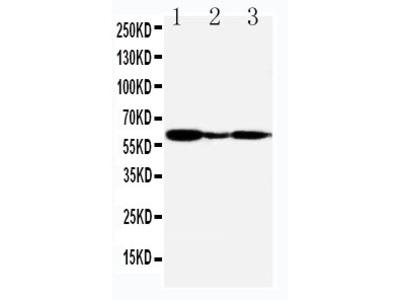 Anti-G-protein coupled receptor 30/GPER1 Antibody