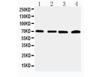 Anti-IRAK2 Antibody