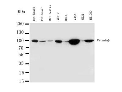 Anti-beta Catenin/CTNNB1 Antibody