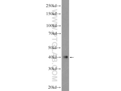 ATXN3L Polyclonal Antibody