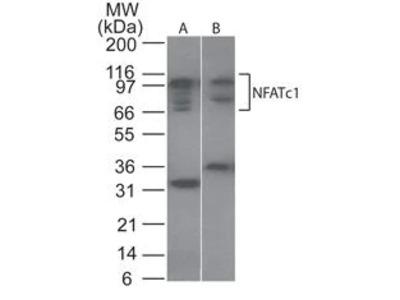 NFATC1 Polyclonal Antibody