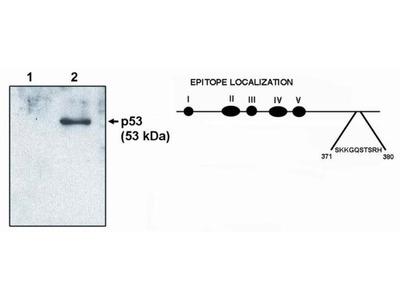 p53 Monoclonal Antibody (HR231)