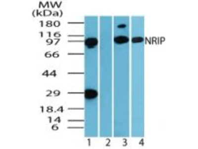 DCAF6 Polyclonal Antibody