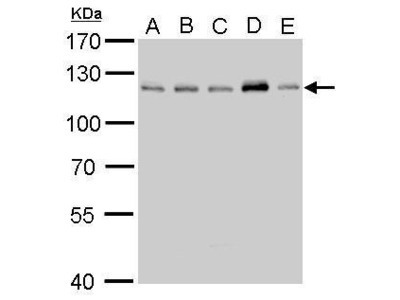 Anti-CYLD antibody