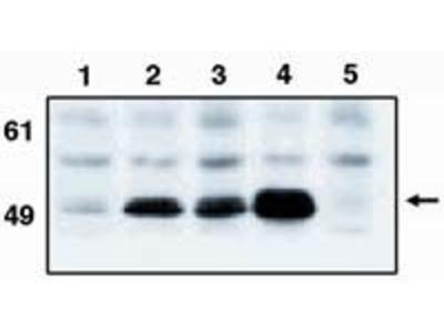 p53 Monoclonal Antibody (X77)