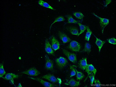 PPP2R2B/A/C/D Polyclonal Antibody