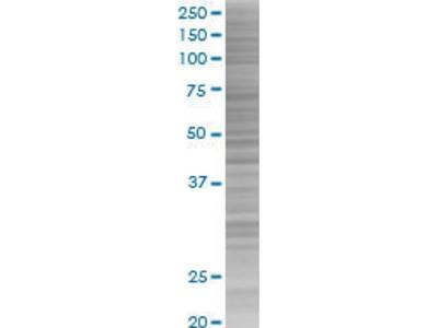 FAM107A Overexpression Lysate (Denatured)