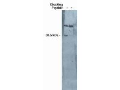 SGPL1 Polyclonal Antibody
