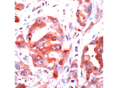 PAR1 Polyclonal Antibody