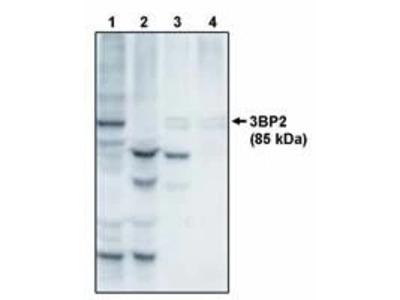 SH3BP2 Polyclonal Antibody
