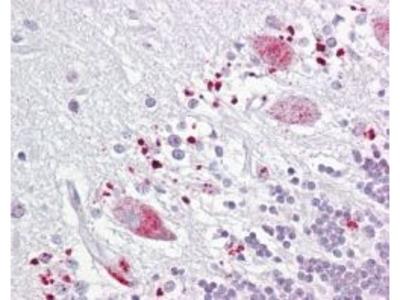 TIGAR Polyclonal Antibody