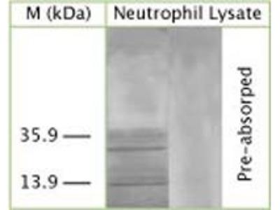 LC3A Polyclonal Antibody