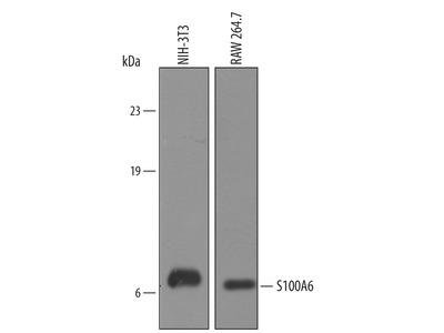 Human / Mouse S100A6 Antibody