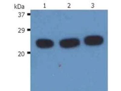 H-Ras Monoclonal Antibody (H-Ras-03)
