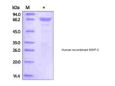 Human CellExp8482 MMP 2 Recombinant