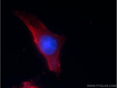 CACNG1 Antibody