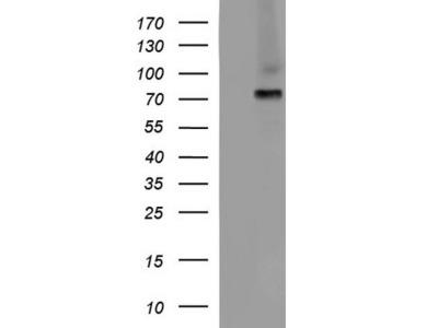 ALB mouse monoclonal antibody, clone OTI1E4 (formerly 1E4)