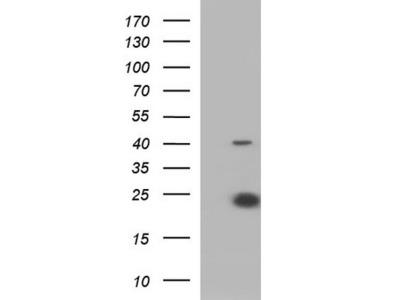 Rabbit Polyclonal IL6 Antibody