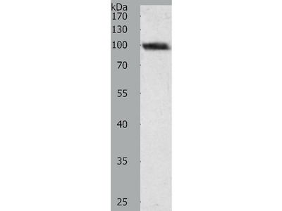 Anti-PYGB Rabbit Polyclonal Antibody