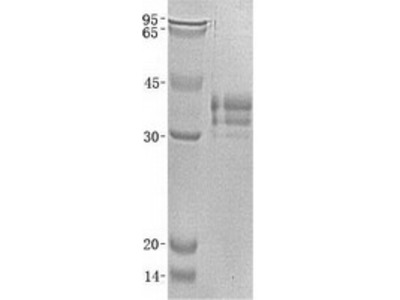 LTBR (NM_002342) Human Recombinant Protein