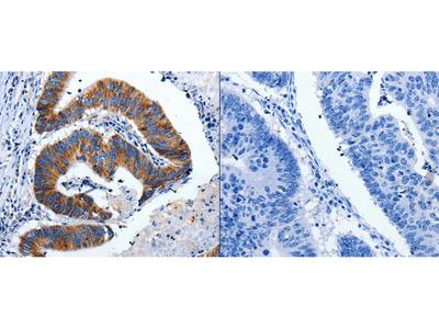 Anti-CHRM2 Rabbit Polyclonal Antibody