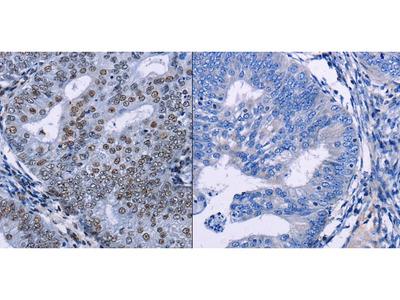 Anti-CREBBP Rabbit Polyclonal Antibody