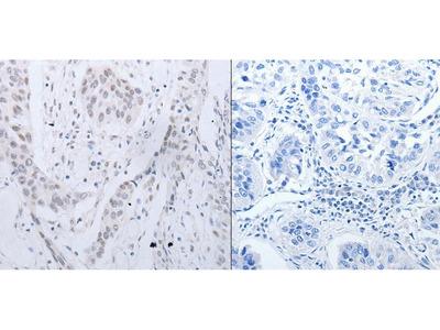 Anti-CCND2 Rabbit Polyclonal Antibody