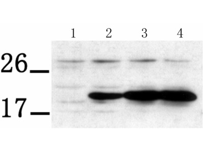 Anti-PTP4A3 Rabbit Polyclonal Antibody
