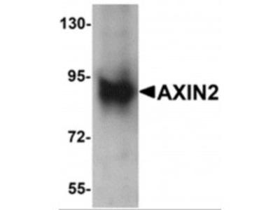 Rabbit Polyclonal AXIN2 Antibody