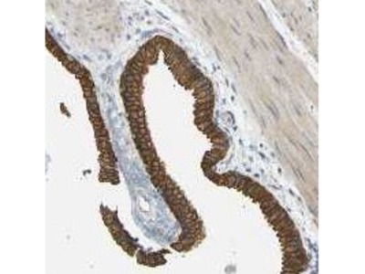 Rabbit Polyclonal TBC1D8 Antibody