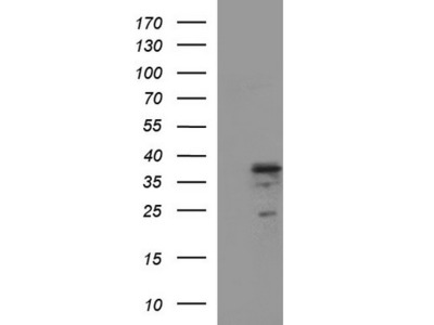 IL1A mouse monoclonal antibody, clone OTI1G2 (formerly 1G2)