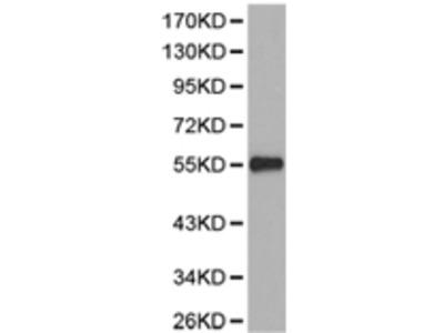 Anti-PPP2R2A Rabbit Polyclonal Antibody