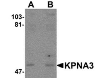 Rabbit Polyclonal KPNA3 Antibody