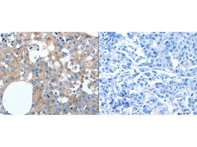 Anti-LILRB3 Rabbit Polyclonal Antibody