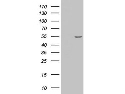 AMACR mouse monoclonal antibody, clone OTI5G8 (formerly 5G8)