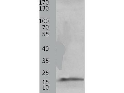 Anti-CMTM5 Rabbit Polyclonal Antibody