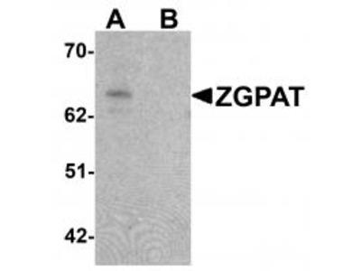 Chicken Polyclonal ZGPAT Antibody