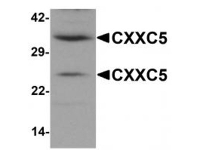 Rabbit Polyclonal CXXC5 Antibody