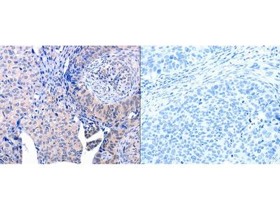 Anti-ACAD10 Rabbit Polyclonal Antibody