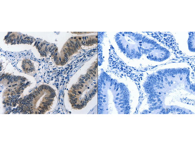 Anti-BPIFB1 Rabbit Polyclonal Antibody